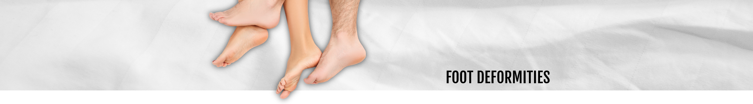 Foot Deformities header at Walk IN Foot Clinic in central London